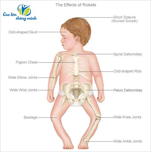 cơ chế còi xương